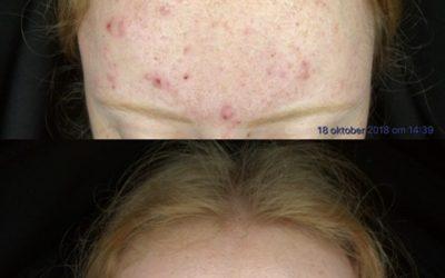 Blog acne